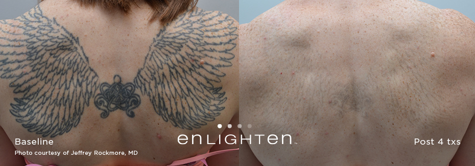 enlighten tattoo removal results