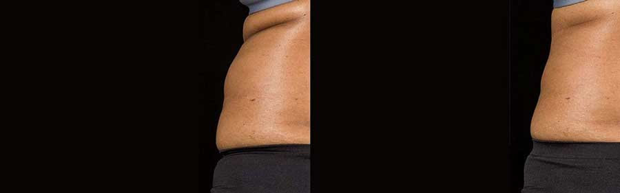 side view of before and after SculpSure