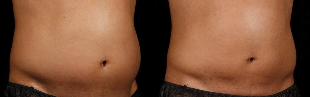 Before & After | Sculpsure