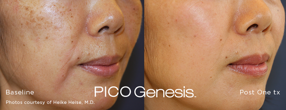 a cheek before and after PICO Genesis
