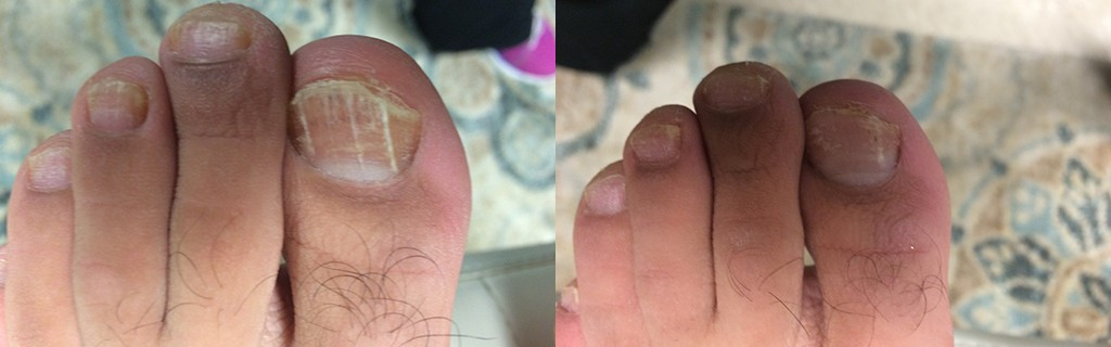 Toe Nail Fungal Removal Before & After