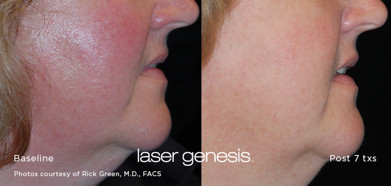 before and after using laser Genesis