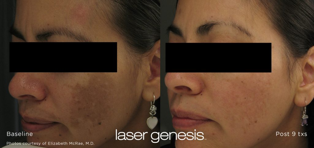 laser genesis results on a woman's face