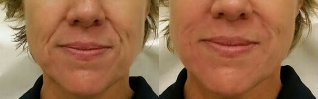 Juvederm Before & After results on a woman